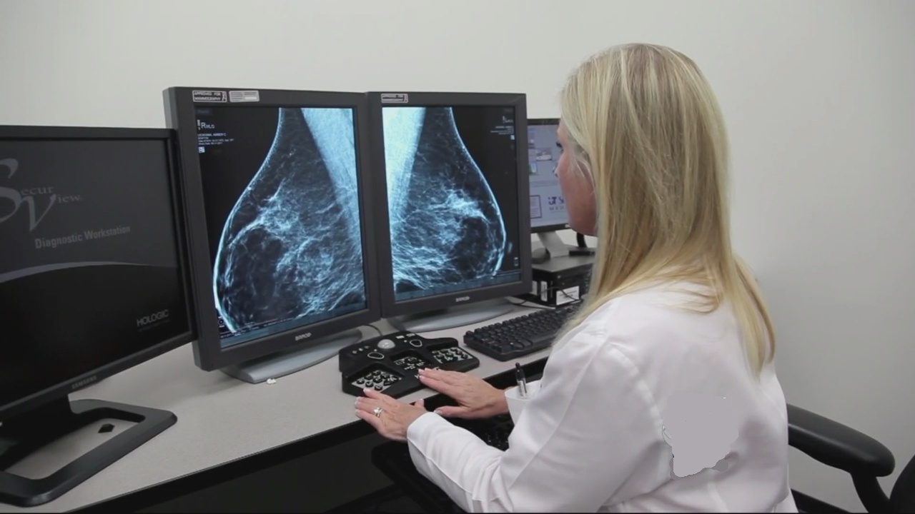 breast_cancer_screening_100715